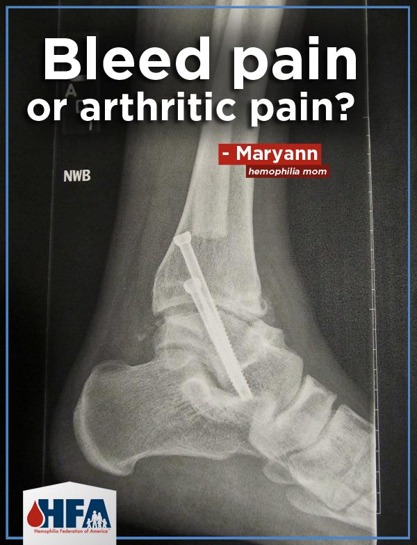 maryann_x-ray