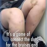 thomas_bruises_momsblog